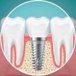 Zašto implantati?