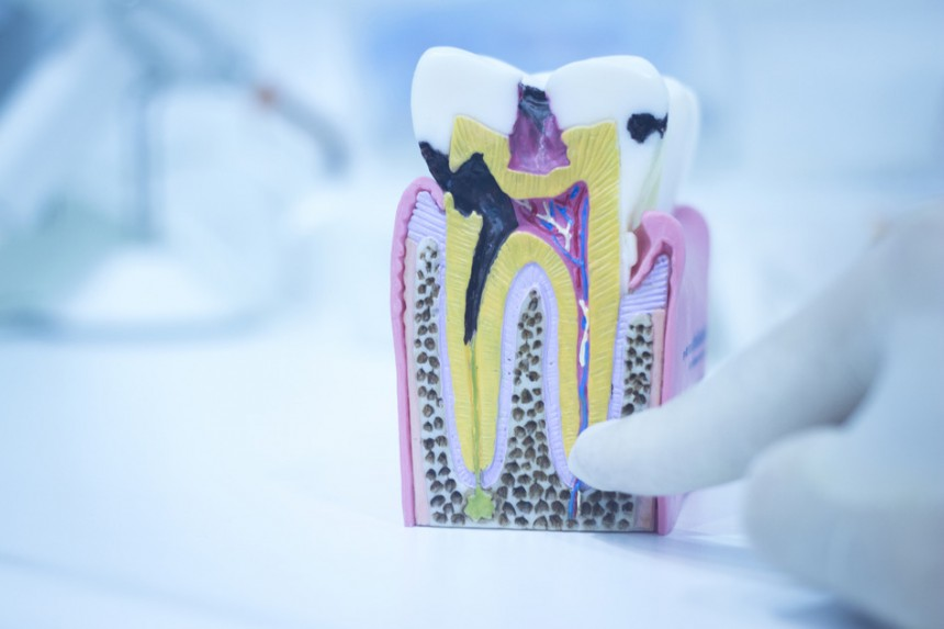 Lečenje kanala korena – endodontska terapija