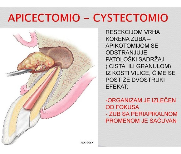 Apikotomia – cistektomia
