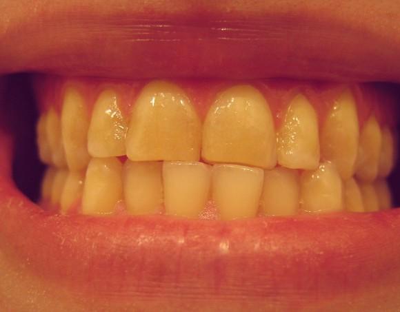 Škripanje zubima – BRUKSIZAM